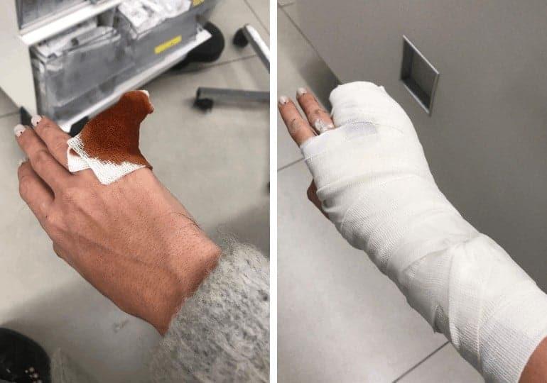 היד של הילה גינדי לאחר התקיפה (צילום: גיל בקר)